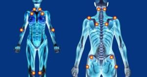 Terapia fotodinâmica é usada para tratar caso incomum de fibromialgia