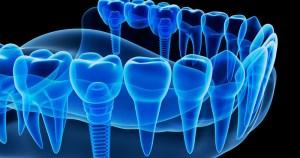 Tecnologia 3D proporciona avanços para a medicina e a odontologia