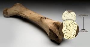 Droga reverte perda óssea em animais, mostra estudo em parceria USP-Unesp