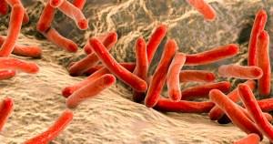 Do genoma ao fator social, cientistas estudam formas de vencer a tuberculose resistente