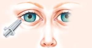 Cientistas apontam procedimento anestésico que causa menos dor em cirurgias do olho