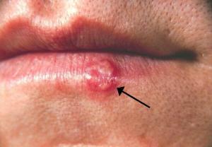 Fator emocional auxilia na manifestação do herpes labial