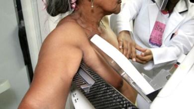 Photo of Rui Costa quer ampliar programa baiano de rastreamento do câncer de mama