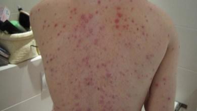 Photo of Aumento de casos de sarampo acende alerta para turistas durante a Copa