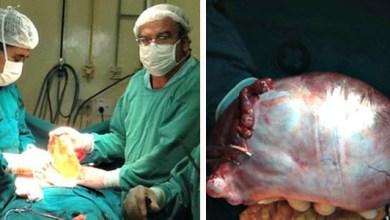 Photo of Brasil: Tumor de 3 quilos é retirado de abdômen de professora no Acre