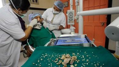 Photo of Mundo: Adolescente passa por cirurgia para retirada de 232 dentes
