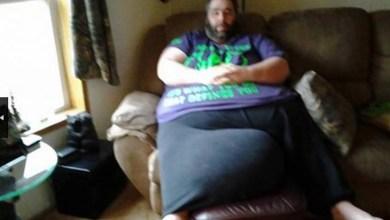 Photo of Mundo: Com saco escrotal de 50 kg, homem arrecada dinheiro para realizar cirurgia de redução