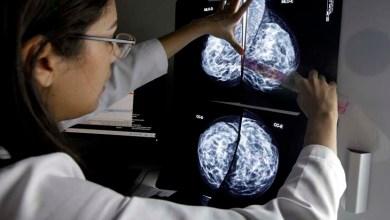 Photo of Governo inaugura novo serviço de diagnóstico por imagem do Centro Estadual de Oncologia