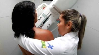 Photo of Chapada: Mulheres de Nova Redenção têm acesso a exames gratuitos de mamografia entre 13 e 17 de fevereiro