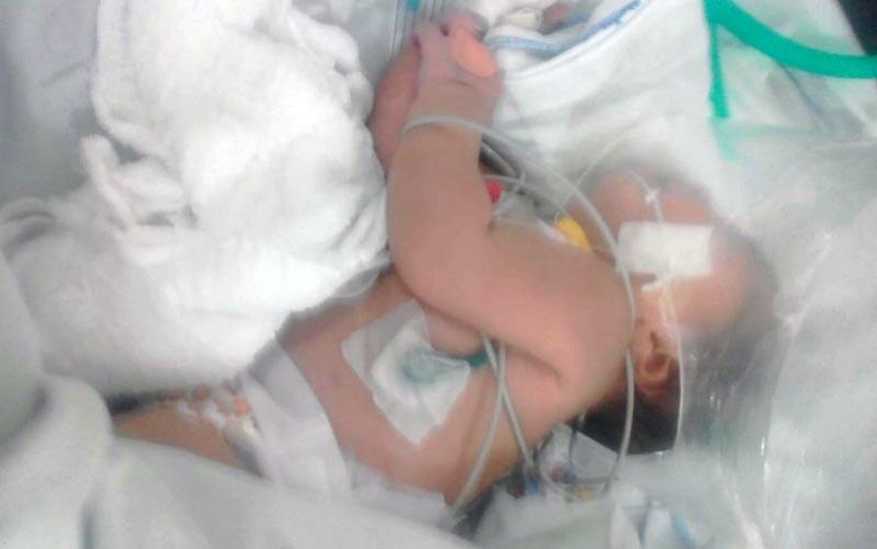 #Bahia: Bebê é picada cinco vezes por escorpião e sobrevive em Vitória da Conquista