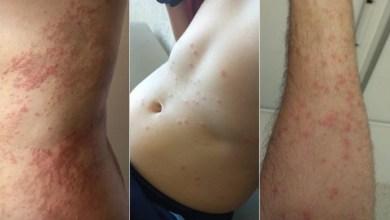 Photo of #Bahia: Surto de dermatite em Salvador é investigado pela Secretaria Municipal de Saúde