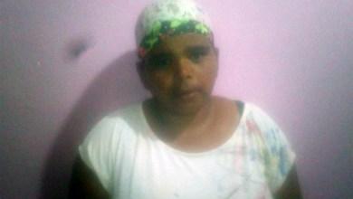Photo of Chapada: Moradora de distrito em Ibicoara pede ajuda para fazer cirurgia para tratamento de câncer