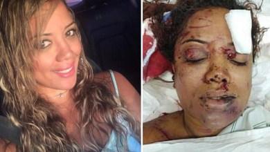 Photo of #Bahia: Mulher sobrevive após levar 69 facadas do namorado em Salvador; veja detalhes