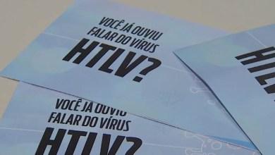 Photo of #Bahia: Número de casos do vírus HTLV no estado é o maior em todo o país