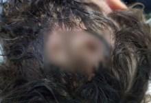 Photo of #Brasil: Mãe de menina com parasitas na cabeça afirma ter medo de ser linchada