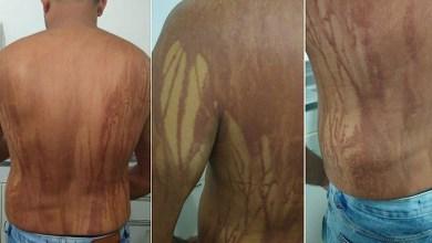 Photo of #Tragédia: Suspeito de intoxicação por petróleo cru tem piora e é internado em Ilhéus
