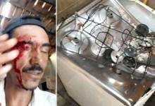 Photo of Chapada: Panela de pressão explode e fere dois em residência no município de Miguel Calmon