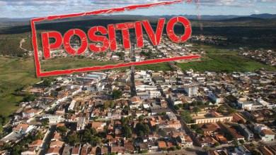 Photo of #Chapada: Primeiro caso de Covid-19 confirmado em Seabra é de um paciente que mora em Palmeiras