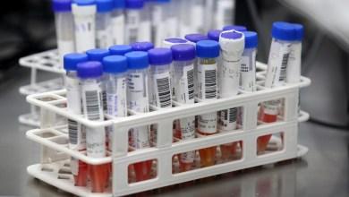 Photo of #Brasil: Hospital em São Paulo investiga se pacientes foram reinfectados pelo novo coronavírus