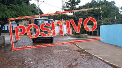Photo of #Chapada: Lençóis registra o vigésimo óbito por covid-19 e possui 10 casos ativos da doença