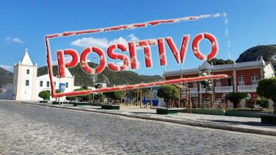 Photo of #Chapada: Jacobina bate recorde de infecção diária por covid-19; 589 pessoas estão com o vírus ativo