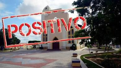 Photo of #Chapada: Dois novos óbitos em razão da covid-19 são registrados em Itaberaba e taxa de ocupação de UTIs se mantém em 100%