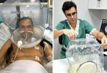 Photo of #Bahia: Capacetes evitam a intubação por causa da covid-19 e salvam vidas em UTI da Santa Casa de Itabuna