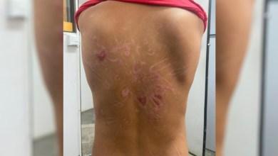 Photo of #Brasil: Polícia prende pai por torturar filho de 8 anos com choques, sessões de afogamento e pisões no pescoço
