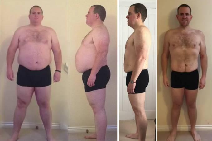 Homem elimina 1 item na alimentação e emagrece 60 quilos