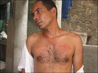 Darsi Ferrer, el digno médico cubano, que fue acusado de Desobediencia Civil, otro caso de Peligrosidad Social.