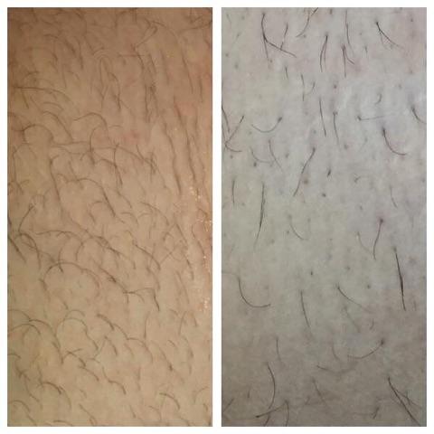 Différence remarquable après une première épilation avec bandelettes en polyester - Josée Dubé Spa Urbain