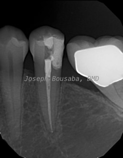 After root canal treatment