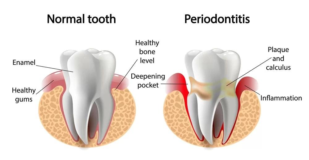 Periodontitis Disease