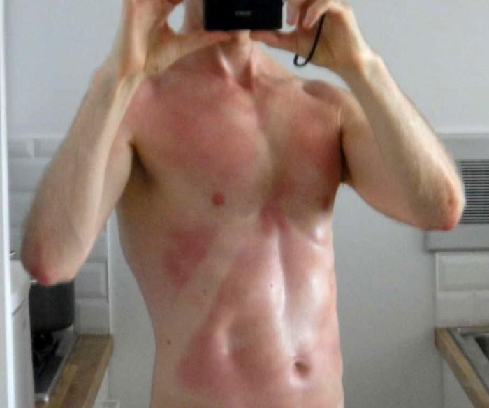 Joshua Spodek sunburn