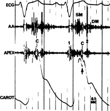 Mid-Systolic Sound Associated with Aortic Insufficiency