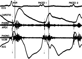 Adverse Effects of Right Ventricular Pacing in a Patient