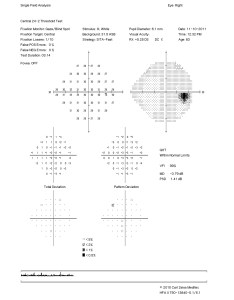 Click to enlarge also vitamin  deficiency optic neuropathy  teaching case report rh journal opted