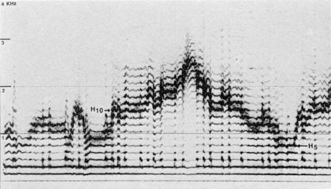 Fig. 28: Imitation par Trân Quang Hai du chant du Rajasthan de la fig. 27.