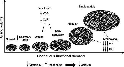 The calcium-sensing receptor: a key factor in the