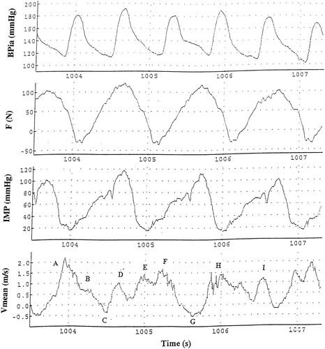 Ultrasound Doppler estimates of femoral artery blood flow