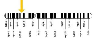 The HLA-DQA1 and HLA-DRB1 genes are located on the short (p) arm of chromosome 6 at position 21.3