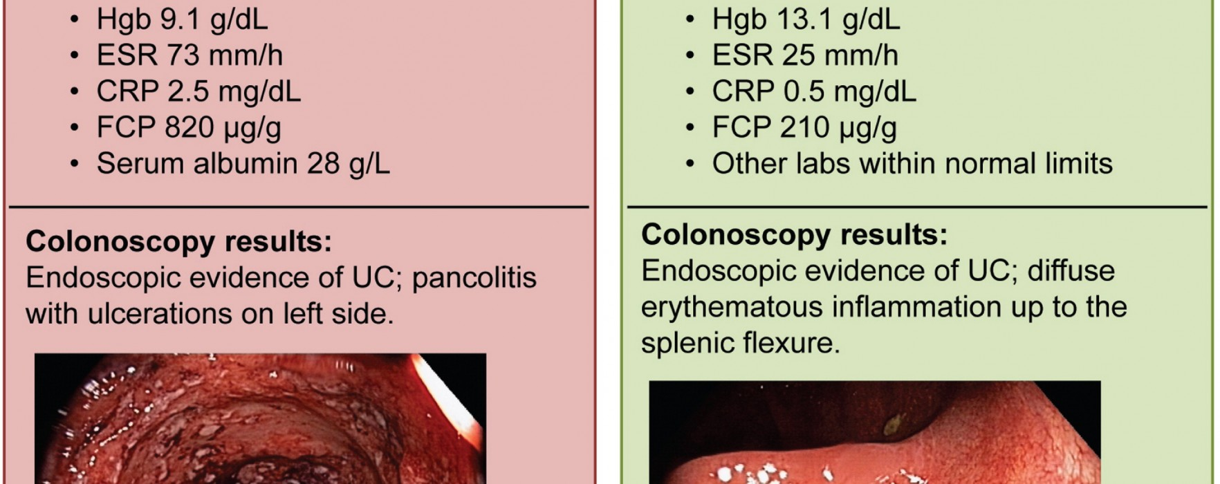 Which Patients with Early-stage Ulcerative Colitis Have the Worst Prognoses?
