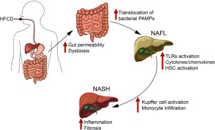 Dietary modulation of intestinal epithelial permeability and microbiota promote NAFLD progression. Diet-mediated changes in the intestinal epithelial permeability and microbial dysbiosis lead to translocation of gut microbial products that promote hepatic inflammation and fibrosis in patients with NASH. PAMP, pathogen associated molecular patterns.