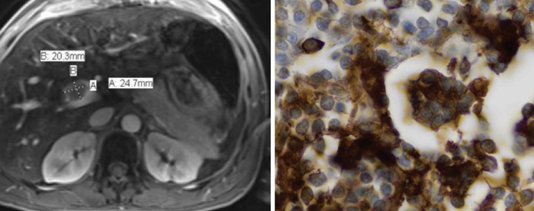 A Patient Thought to Have Cholangiocarcinoma Found to Have Rosai-Dorfman Disease