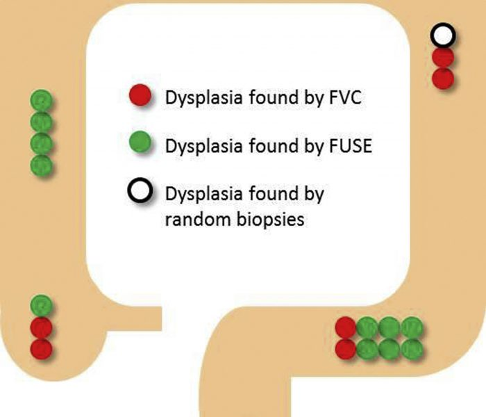 FUSE Outperforms Forward-viewing Colonoscopy in Detecting Dysplasia in Patients With IBD