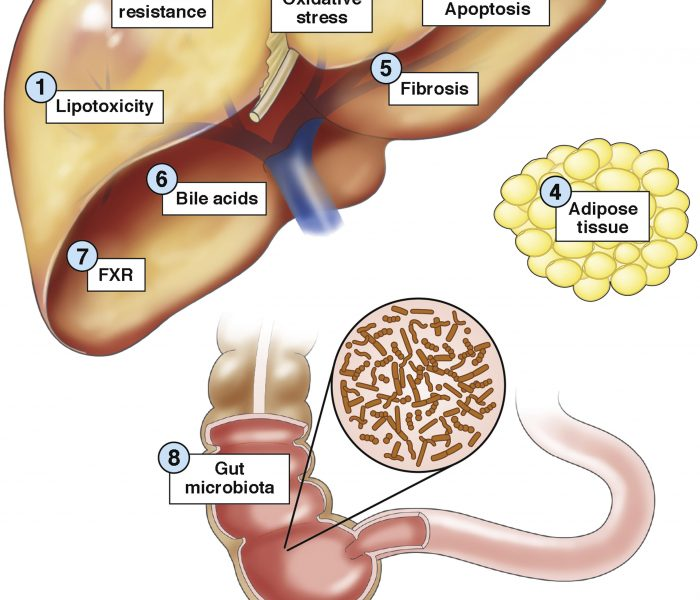 What is the Best Management Strategy for Patients With NAFLD?