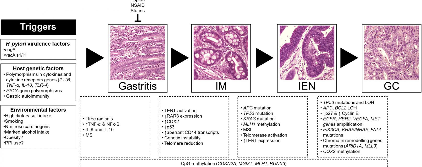 Review: Pathogenesis and Prevention of Gastric Cancer
