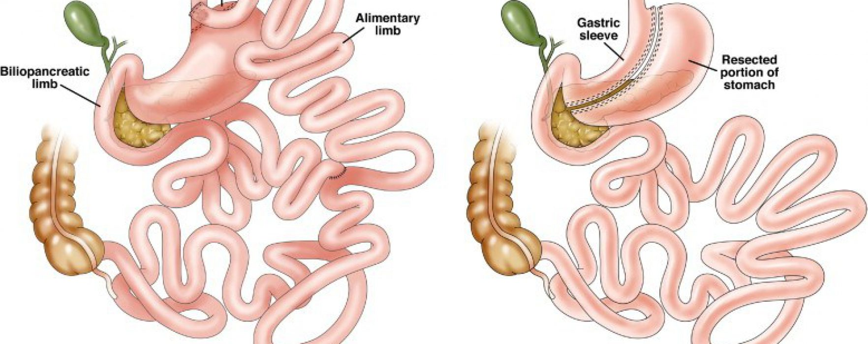 Is Bariatric Surgery the Best Treatment for NAFLD?