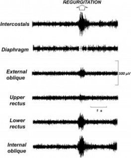 Example of diaphragmatic EMG recording associated with a rumination episode. There is an increase in EMG activity of intercostals (costal wall expansion) and in anterior abdominal muscles (abdominal compression) and brief loss of signal in diaphragmatic recording (backflow of gastric content) with no increase (actually a slight decrease) in basal activity (hiatal relaxation).