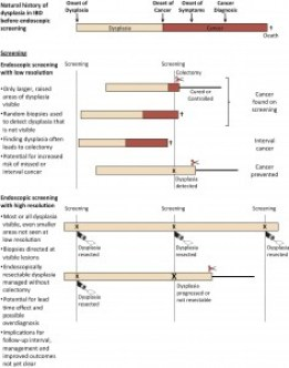 Progression of dysplasia in patients with IBD and endoscopic screening strategies, including low- and high-resolution methods.